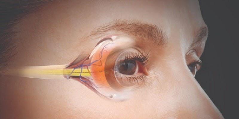 ciri ciri kanker mata